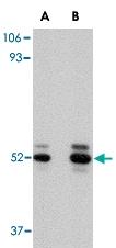 PAB13056 - Acid ceramidase