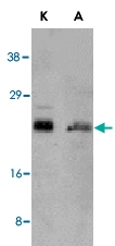 PAB13076 - Bcl-2-like 11