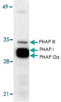 PAB13111 - ANP32A