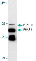 PAB13112 - ANP32A