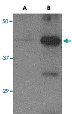 PAB13131 - Influenza A H5N1