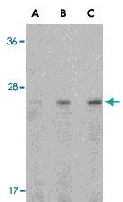 PAB13150 - Adiponectin