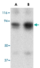 PAB13180 - ATF6 alpha
