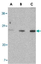 PAB13181 - XBP1 / TREB5