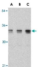PAB13182 - XBP1 / TREB5