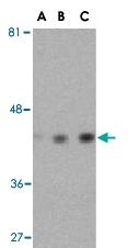 PAB13193 - Actin beta / ACTB