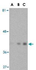 PAB13194 - Actin beta / ACTB