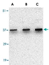PAB13207 - Uracil-DNA glycosylase (UNG)
