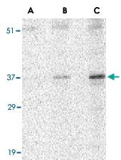 PAB13208 - Uracil-DNA glycosylase (UNG)