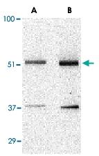 PAB13214 - TANK / ITRAF