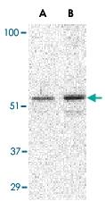 PAB13215 - TIP47 / M6PRBP1