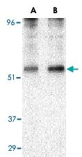 PAB13216 - TIP47 / M6PRBP1