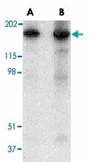 PAB13260 - Reticulon-4 / RTN4