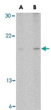 PAB13274 - Antileukoproteinase (ALP)