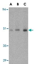 PAB13282 - ORAI1