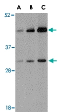 PAB13283 - TARDBP