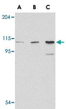 PAB13311 - Glutamate receptor 5 / GLUR5