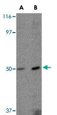 PAB13315 - Zygin-2