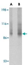PAB13372 - Transportin-3 (TNPO3)
