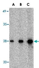 PAB13406 - CIDE-B