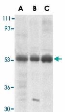 PAB13408 - TRIM5 / RNF88