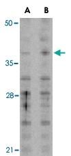 PAB13415 - MCL1
