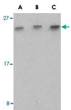 PAB13422 - C1QTNF7