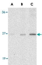 PAB13423 - C1QTNF7