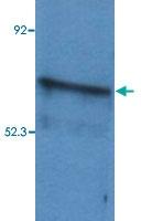 PAB13541 - B-cell linker protein / BLNK