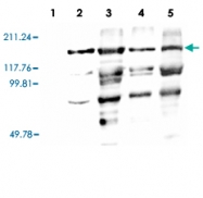 PAB13582 - Vitellogenin