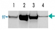 PAB13592 - Glycogen phosphorylase muscle form