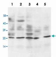 PAB13679 - Apolipoprotein A I / APO AI
