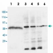 PAB13684 - Lipoprotein lipase