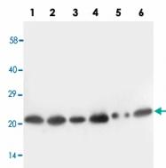 PAB13688 - SCN1B