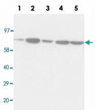 PAB13689 - Complex II subunit 70 kDa Fp