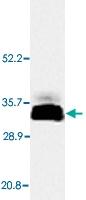 PAB13762 - Adiponectin