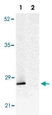 PAB13806 - TP53INP1