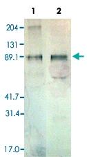 PAB13838 - Thrombopoietin