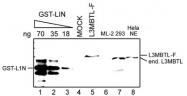 PAB14105 - L3MBTL1