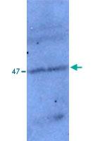 PAB14117 - TP53I11