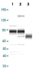 PAB14292 - Herpes Virus Type 8 / HHV8
