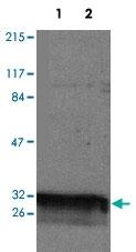 PAB14303 - 14-3-3 protein theta