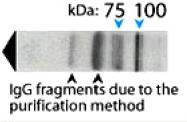 PAB14335 - AP1 complex subunit beta-1 / AP1B1
