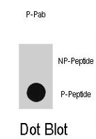 PAB1644 - TP53 / p53