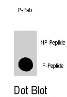 PAB1674 - MAP kinase p38 alpha / MAPK14