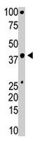 PAB1687 - BMI-1 / RNF51