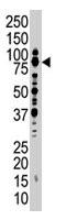PAB1746 - SMURF1