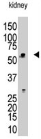 PAB1765 - RBCK1 / RNF54