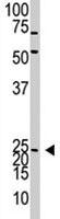 PAB1915 - Neurogenin 2
