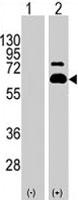 PAB1968 - RPS6KB1 / STK14A